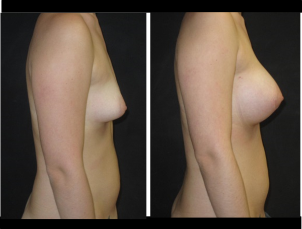 Implants cas 2 profil