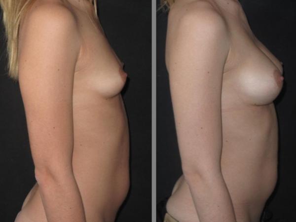 Implants cas 3 profil