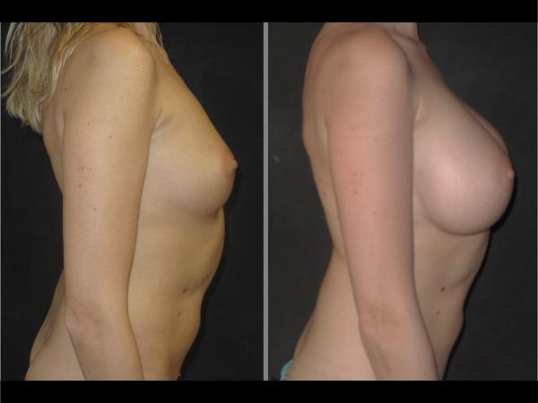 Implants cas 1 profil