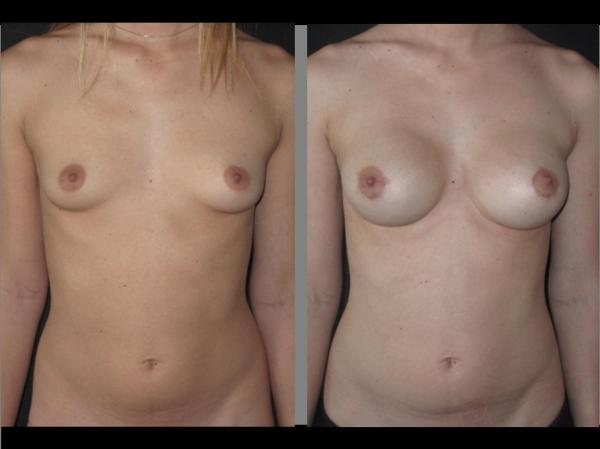 Implants cas 3 face