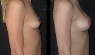 Implants cas 3 profil
