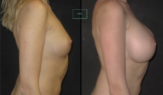 Implants cas 1 profil